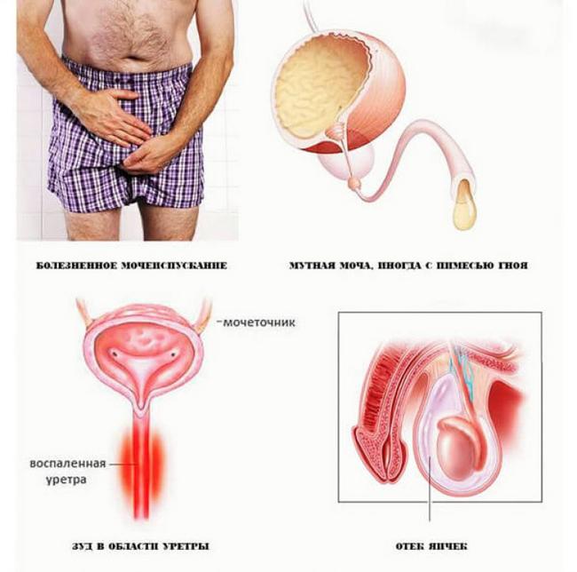 Хламідіоз у чоловіків: симптоми і лікування