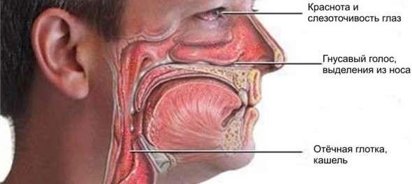Риніт: симптоми і лікування