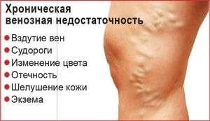 Венозна недостатність: симптоми і лікування