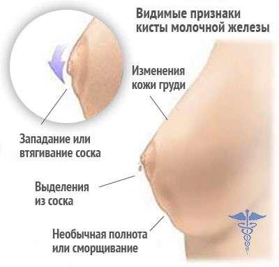 Кіста молочної залози: симптоми і лікування