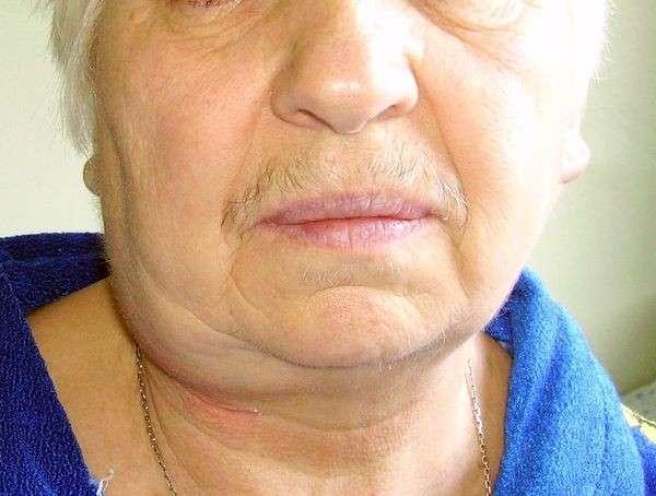 Кіста шиї: симптоми і лікування