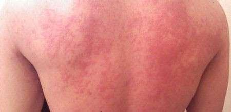 Кропивянка у дітей: симптоми і лікування