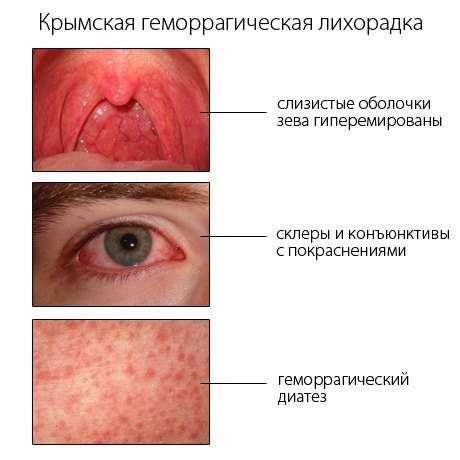 Геморагічна лихоманка: симптоми і лікування