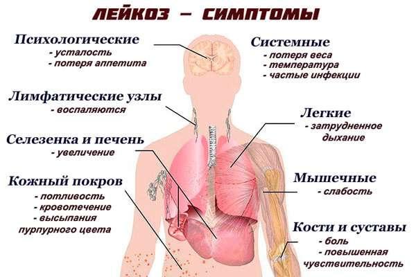 Гострий лейкоз: симптоми і лікування