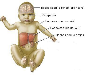 Хвороба кленового сиропу: симптоми і лікування