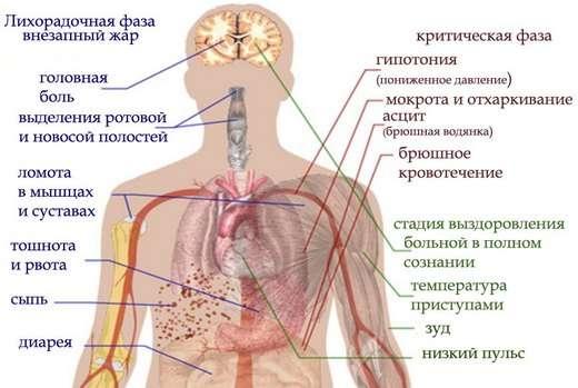 Лихоманка Денге: симптоми і лікування