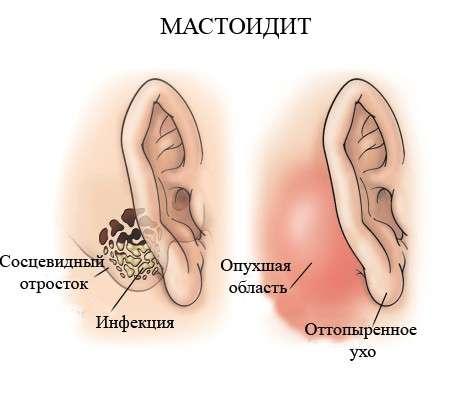 Мастоїдит: симптоми і лікування