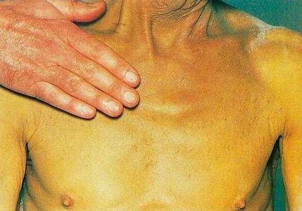 Механічна жовтяниця: симптоми і лікування