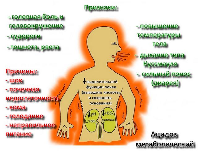 Метаболічний ацидоз: симптоми і лікування