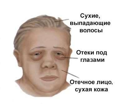 Мікседема: симптоми і лікування