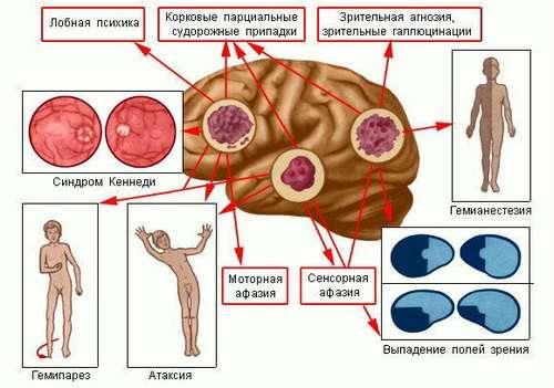 Менінгіома: симптоми і лікування