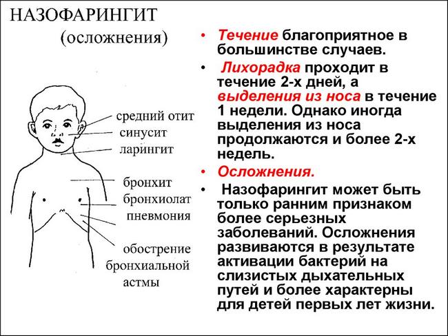 Назофарингіт: симптоми і лікування