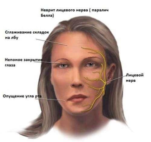 Неврит: симптоми і лікування