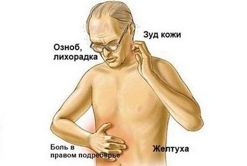 Пухлина підшлункової залози: симптоми і лікування