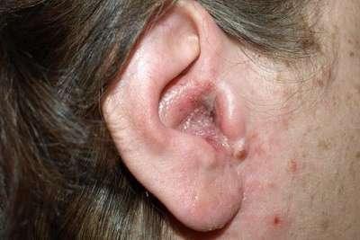 Отомикоз: симптоми і лікування