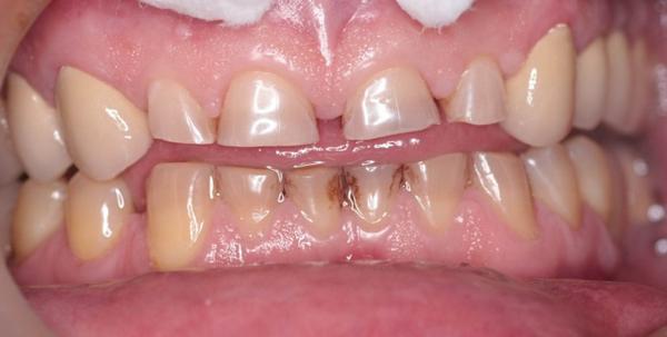Патологічна стертість зубів: симптоми і лікування