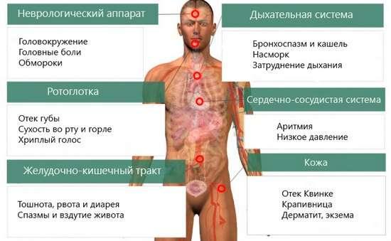 Харчова алергія: симптоми і лікування