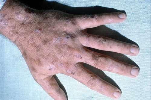 Порфирія: симптоми і лікування