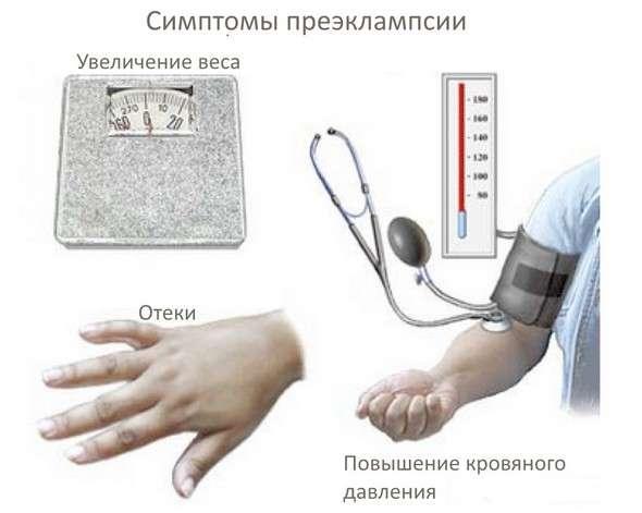 Прееклампсія: симптоми і лікування