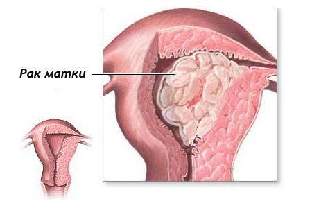 Рак матки: симптоми і лікування