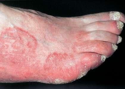 Рубромікоз (руброфітія): симптоми і лікування