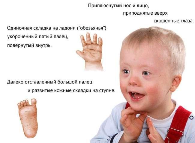 Синдром Дауна: симптоми і лікування