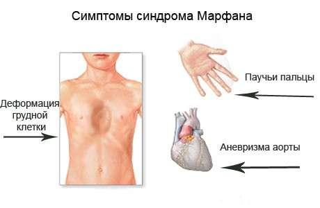 Синдром Марфана: симптоми і лікування