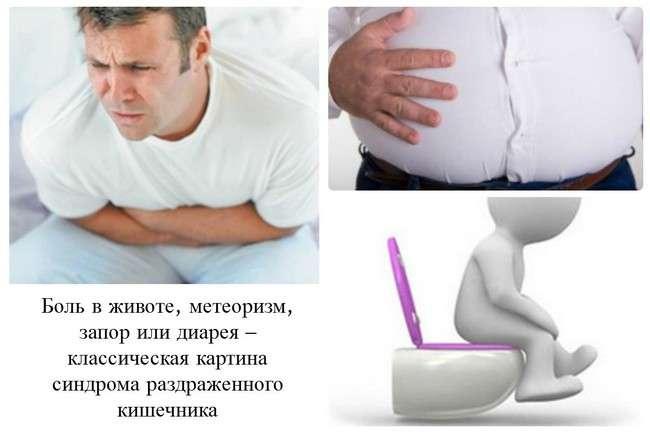 Синдром роздратованого кишечника: симптоми і лікування