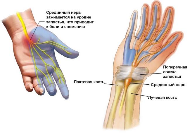 Синдром запястного каналу: симптоми і лікування