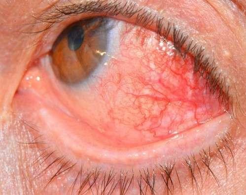 Склерит: симптоми і лікування