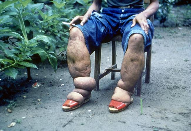 Слонова хвороба: симптоми і лікування