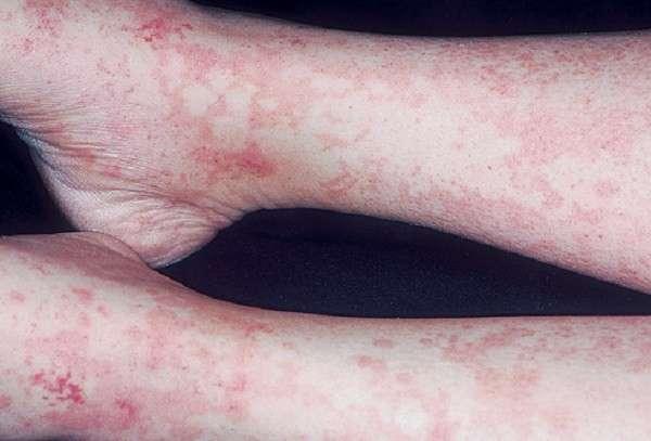 Сироваткова хвороба: симптоми і лікування