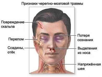 Забій головного мозку: симптоми і лікування