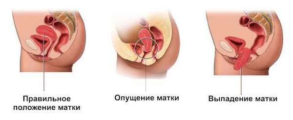 Випадання матки: симптоми і лікування