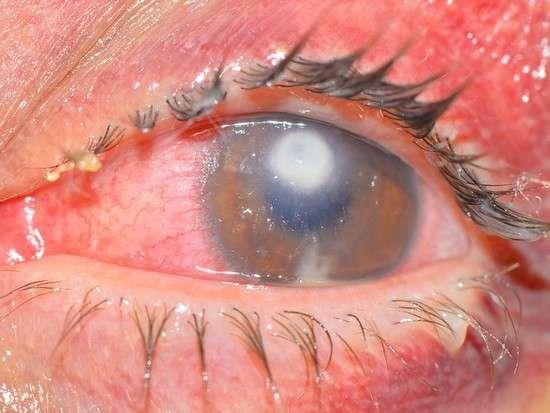 Виразка рогівки: симптоми і лікування