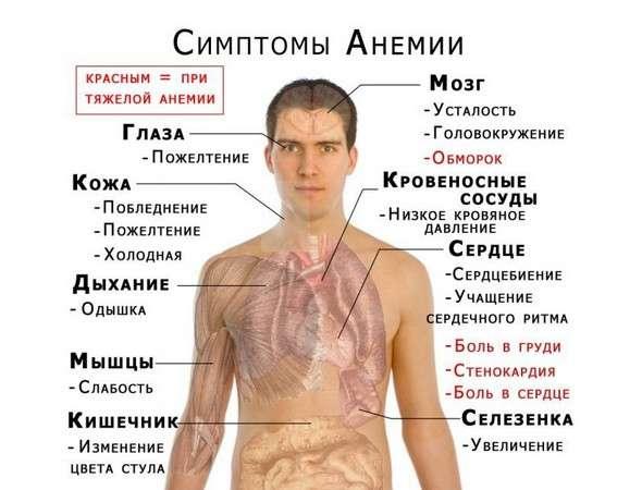 Залізодефіцитна анемія: симптоми і лікування