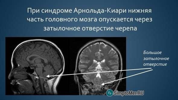 Синдром (аномалія) Арнольда-Кіарі: симптоми і лікування