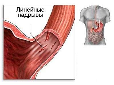 Шлунково-кишкова кровотеча: симптоми і лікування
