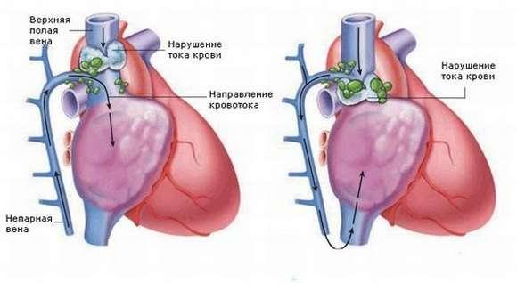 Синдром верхньої порожнистої вени: симптоми і лікування