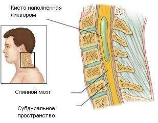 Сирингомиелия: симптоми і лікування
