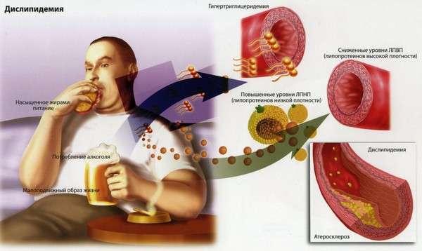 Дисліпідемія (гіперліпідемія): симптоми і лікування