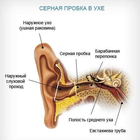 Сірчана пробка: симптоми і лікування