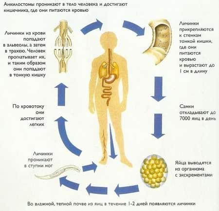 Анкілостомідоз: симптоми і лікування