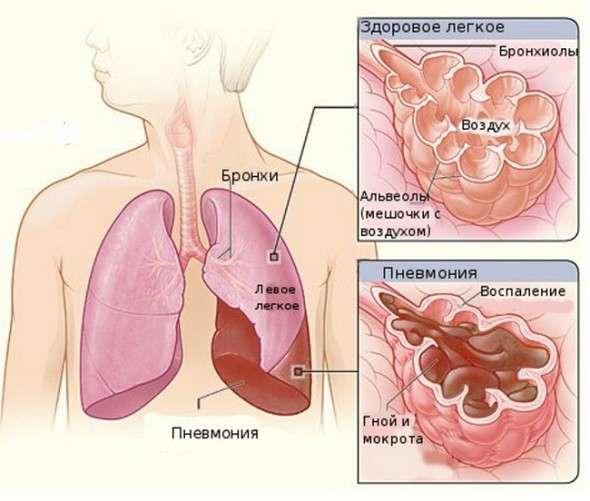 Вірусна пневмонія: симптоми і лікування