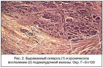 Фіброз (склероз) підшлункової залози: симптоми і лікування