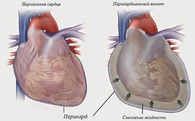 Гідроперикард: симптоми і лікування