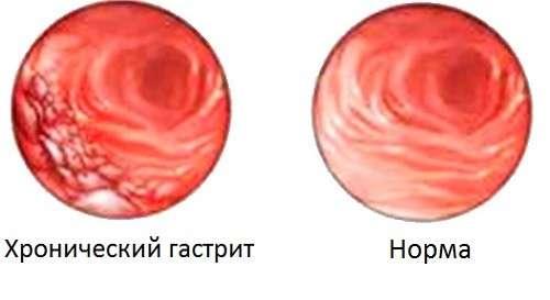 Хронічний гастрит: симптоми і лікування