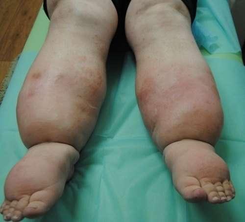 Лімфостаз нижніх кінцівок: симптоми і лікування