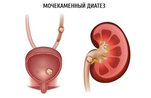 Сольовий діатез: симптоми і лікування