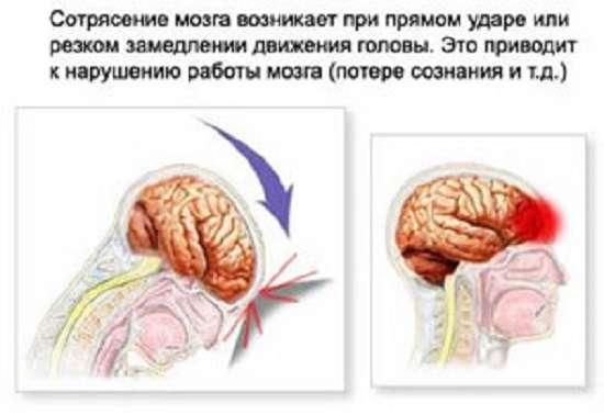 Струс головного мозку: симптоми і лікування